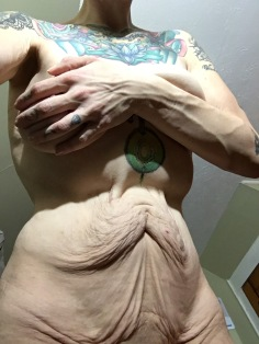 learning to love my excess skin
